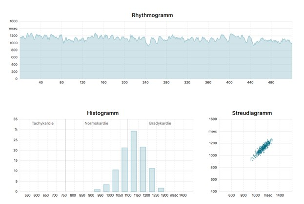 HRV-Messung, Rhythmogramm